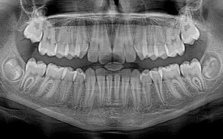 Diş Çene Röntgeni
