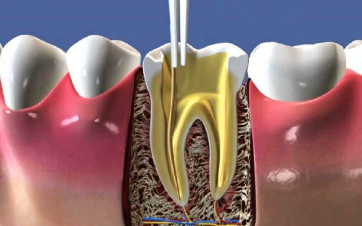 Endodonti (Kanal Tedavisi)